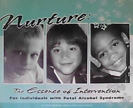 Nurture-The-Essence-of-intervention